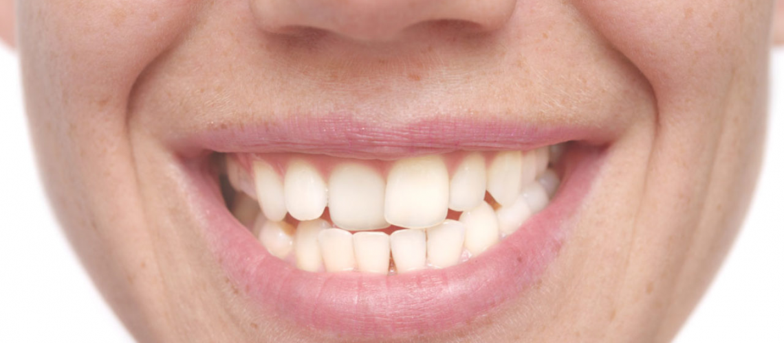Enhancing the Smile by Straightening Crooked Teeth
