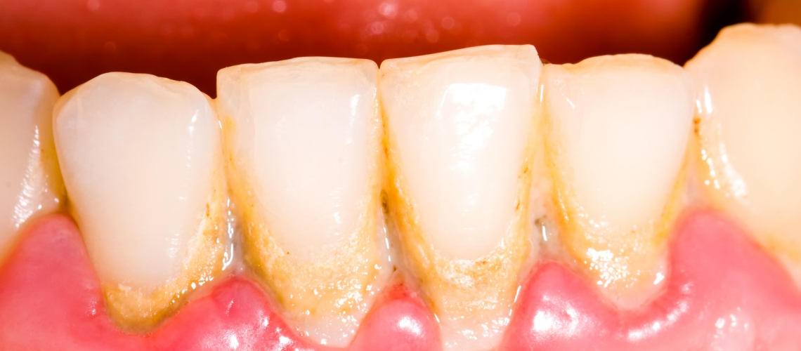 Tips You Can Prevent Tooth Plaque