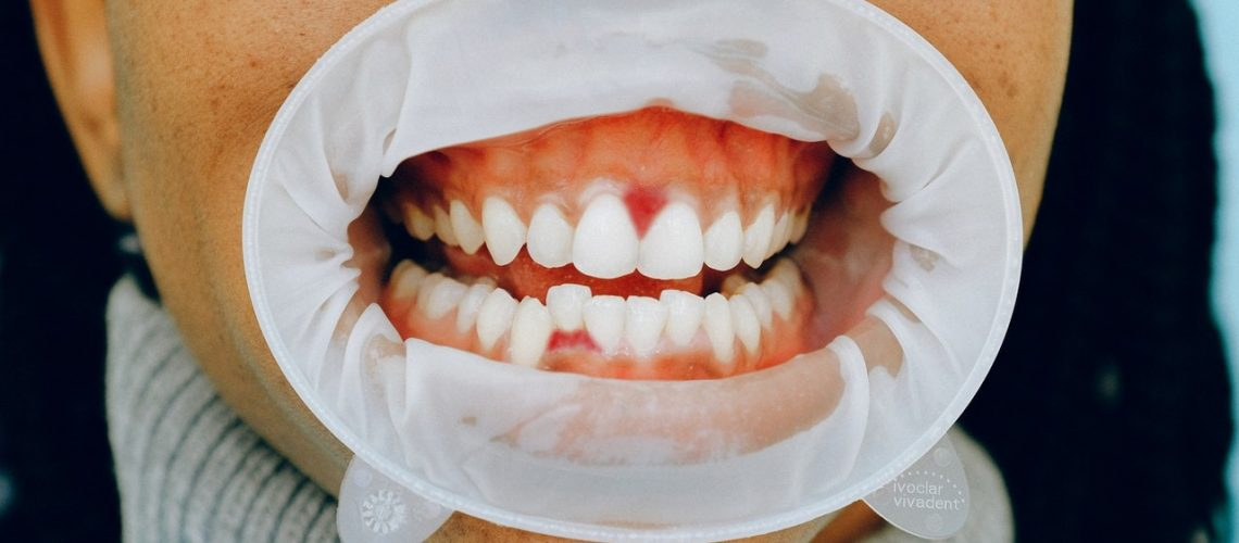 Tooth Infection